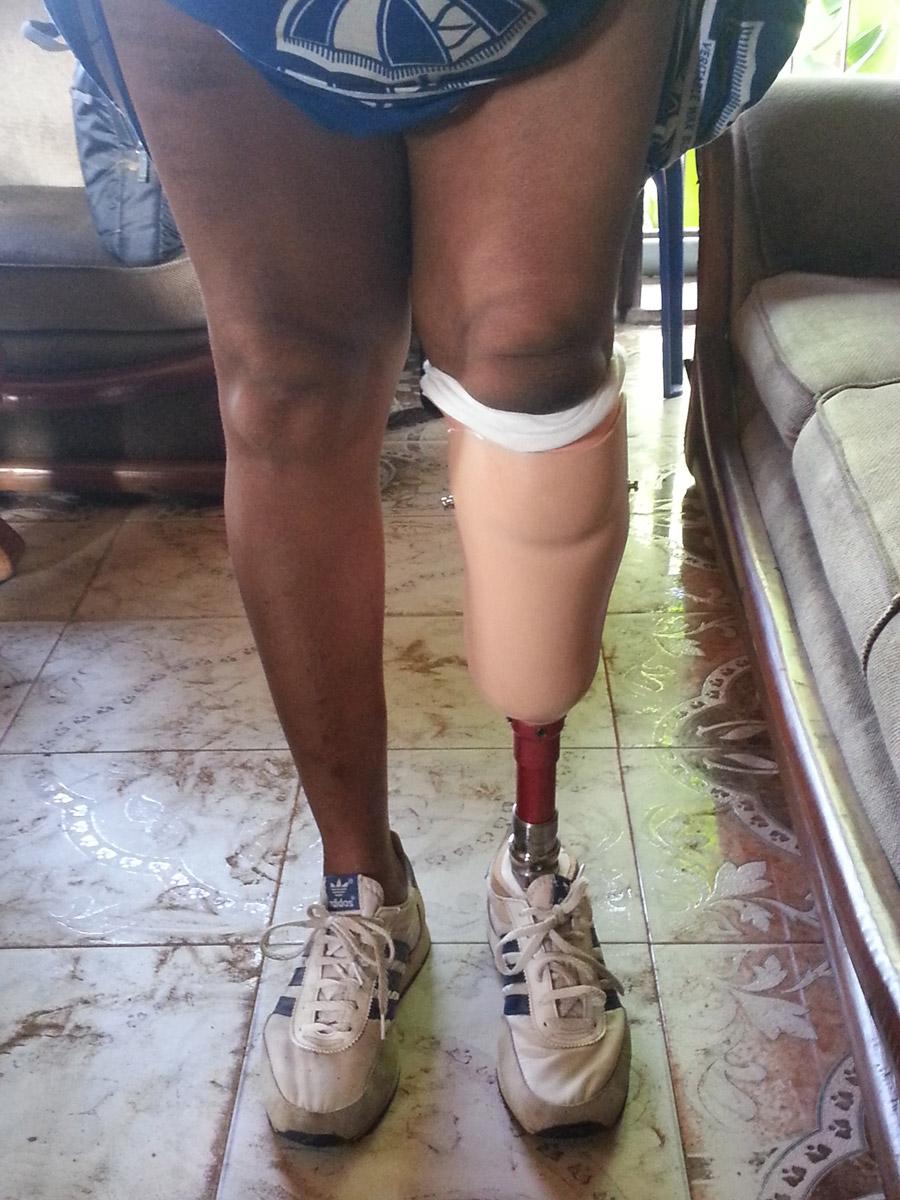 protesi_gamba_nigeria_intermed