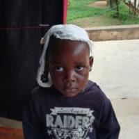 Intermed_Burundi_bambino